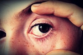 Eye drops: without proper applications do not work