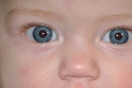 Are you carefully watching the development of your child's vision?